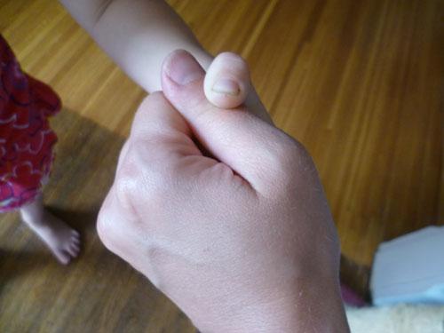 I declare a thumb war!