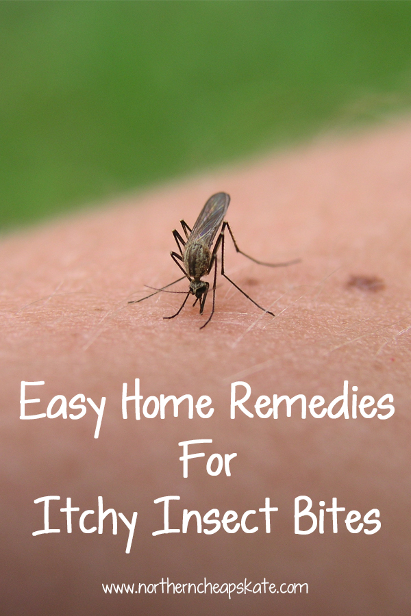 Easy Home Remedies For Itchy Insect Bites